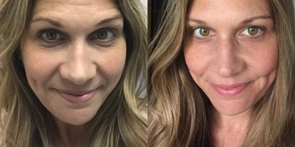 Not sure if you are ready for Botox? Read why this wife went for it and loved every second of it!